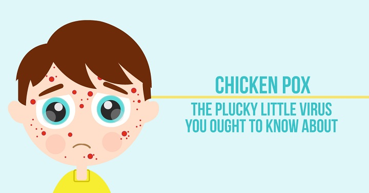 Complete Indian diet plan for chicken pox: Do's and Dont's