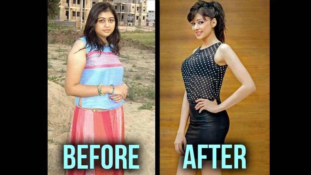 sapna vyas patel before and after