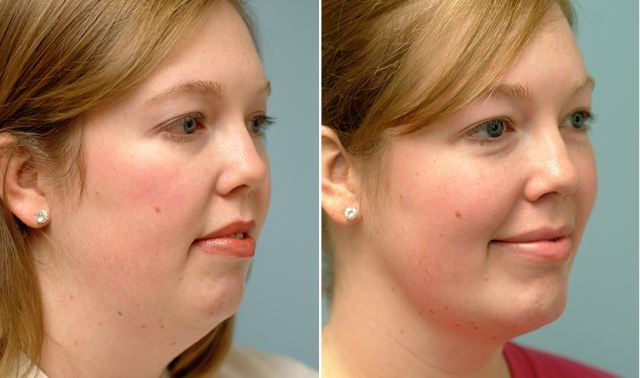 double chin problem: how to lose face fat
