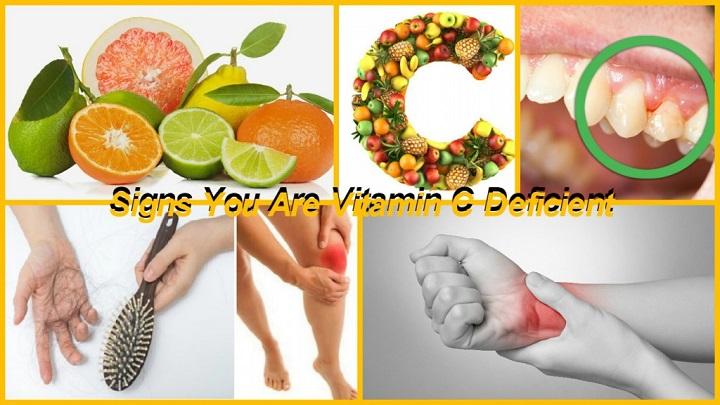 vitamin c deficiency symptoms : Vitamin c benefits